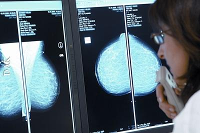 Brustkrebs bei Frauen